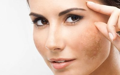 Eliminare le macchie sul viso